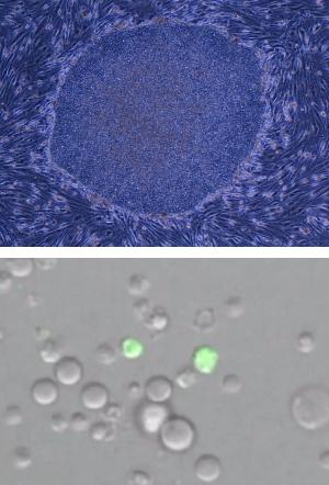STAP細胞とiPS細胞