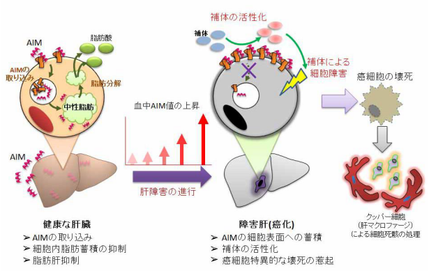 タンパク質AIMが肝臓がんを抑制