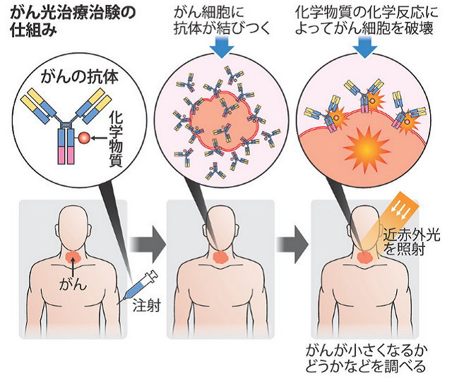 光免疫療法の仕組み